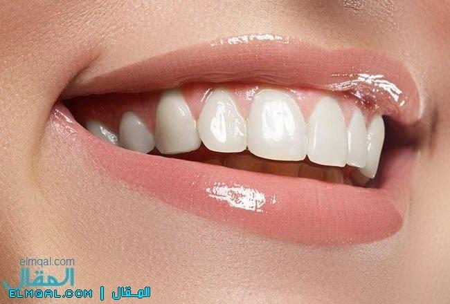 تبييض الاسنان بشكل صحيح