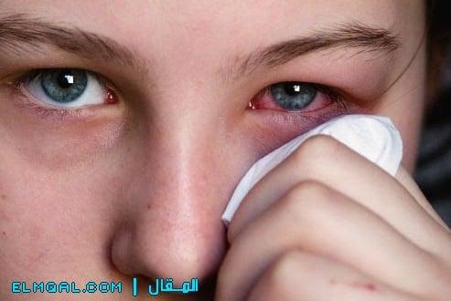 كيف تحمي نفسك من حمى القش