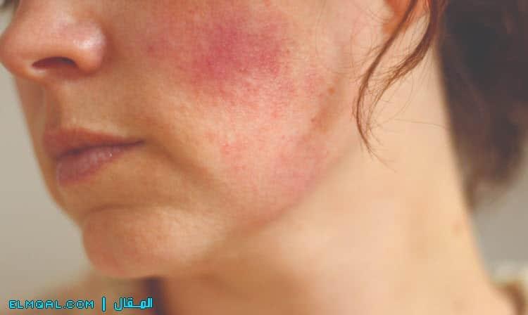 السيطرة على التهاب الجلد الدهني بدون علاج