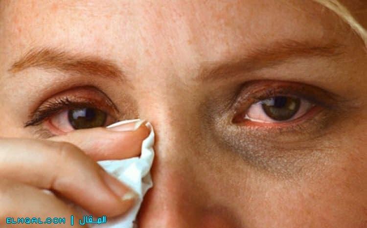 حساسية العينين