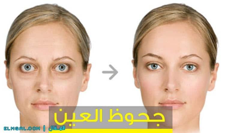 علاج جحوظ العين مرض جريفيز بطرق طبيعية
